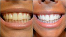اثرات سیگار کشیدن بر دندان، لثه و زبان