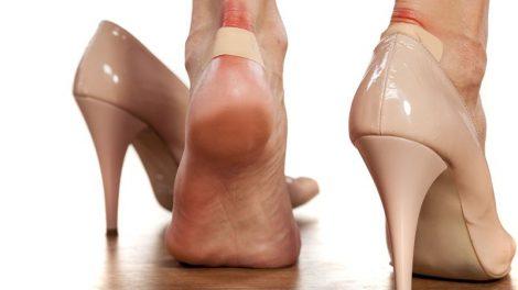 چگونه تاول پا را درمان کنیم