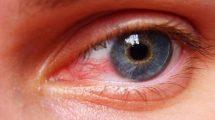 آشنایی با بیماری های چشم