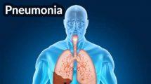 حقایقی درباره بیماری پنومونی یا ذات الریه