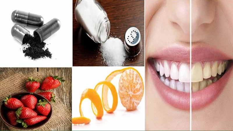 با 3 روش ساده دندانتان را براق کنید
