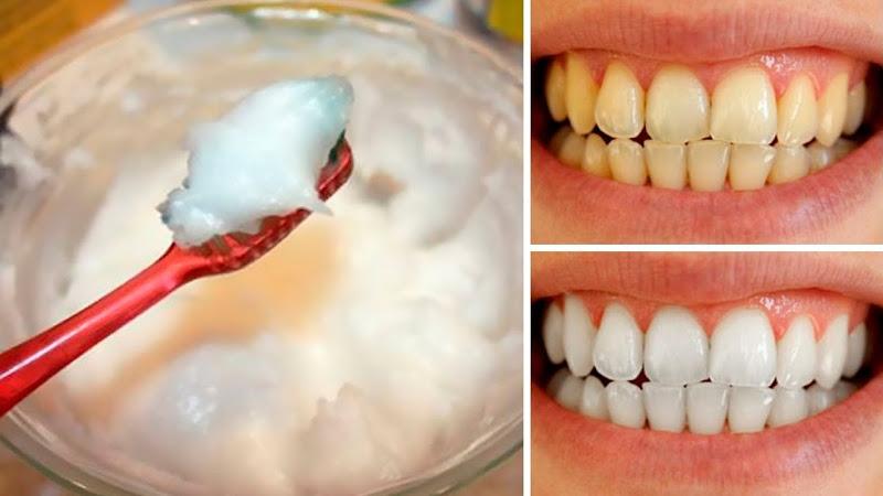 شستن دندان با روغن نارگیل