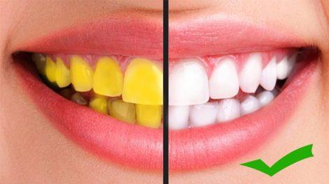 چه موادی دندان را زرد و چه موادی سفید می کند
