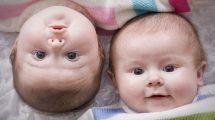 عدد بتا در بارداری دو قلو