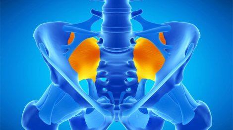 ورزش برای درمان التهاب مفصل ساکروایلیاک